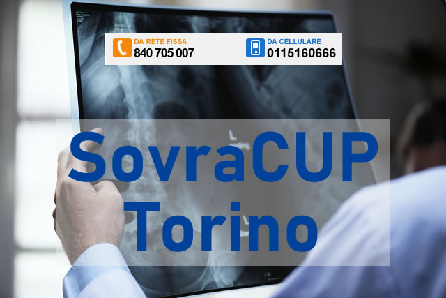 SovraCUP Torino